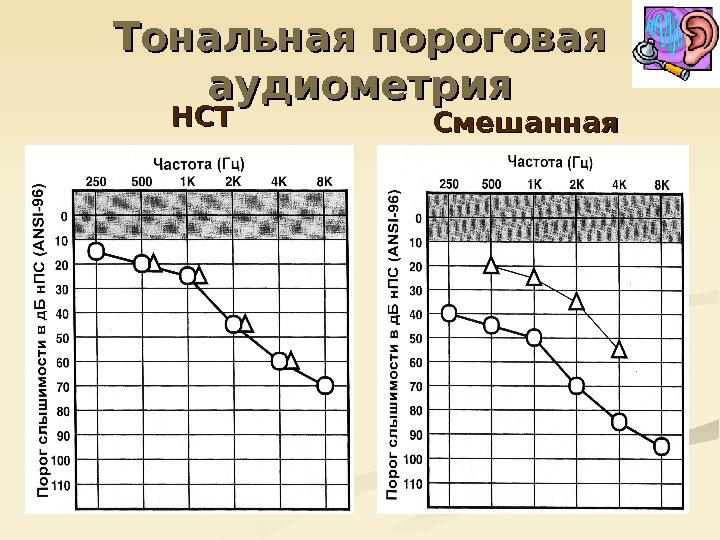 Аудиометрия: тональная, пороговая, речевая, компьютерная | компетентно о здоровье на ilive