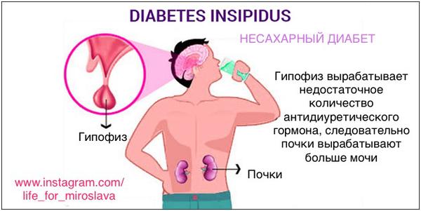 Несахарный диабет: что это такое, симптомы, лечение, диагностика