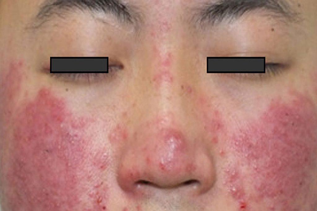 Подкожный клещ: на лице, на теле человека – симптомы и лечение - mama.ua