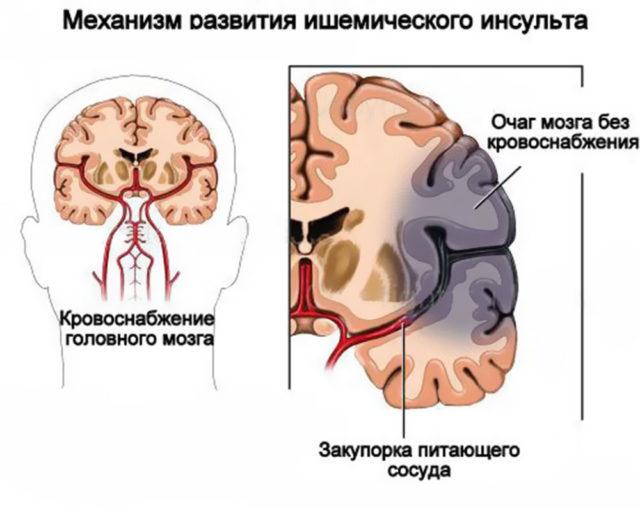 Инфаркт мозга тромбоз мозговых артерий