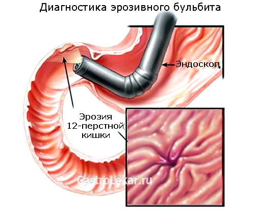 Умеренный бульбит - что это такое, как лечить, симптомы