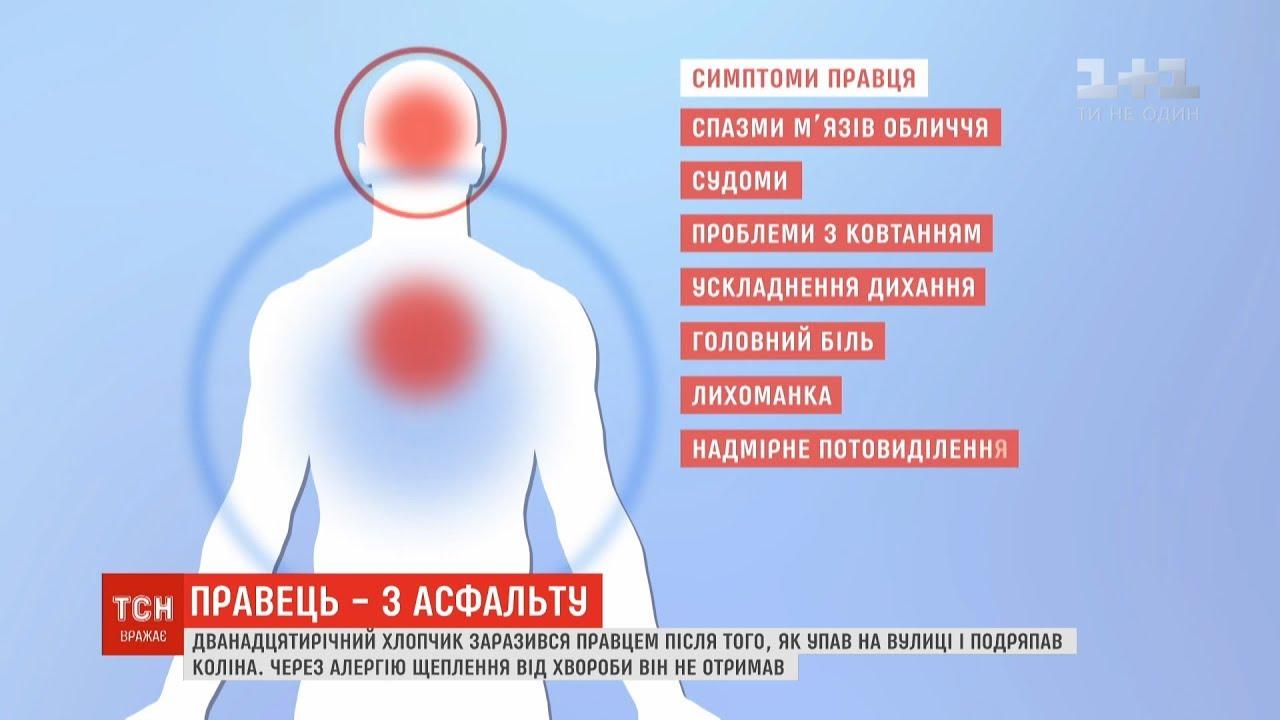 Столбняк - симптомы, лечение, причины болезни, первые признаки