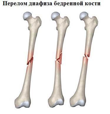Внутрисуставные переломы: что это такое, диафизарный и эпифизарный перелом, признак характерный только для перелома | ревматолог | zaslonovgrad.ru