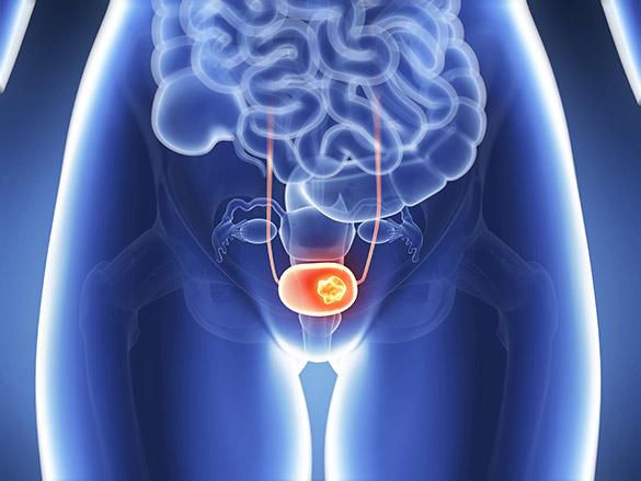 Трансуретральная резекция мочевого пузыря: послеоперационный период и восстановление