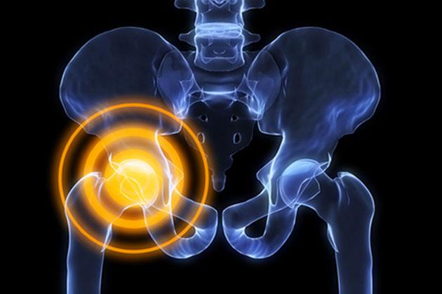 Коксартроз тазобедренного сустава: причины, симптомы, лечение