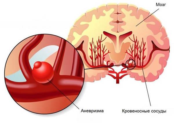 Аневризма сосудов головного мозга: симптомы, причины, лечения