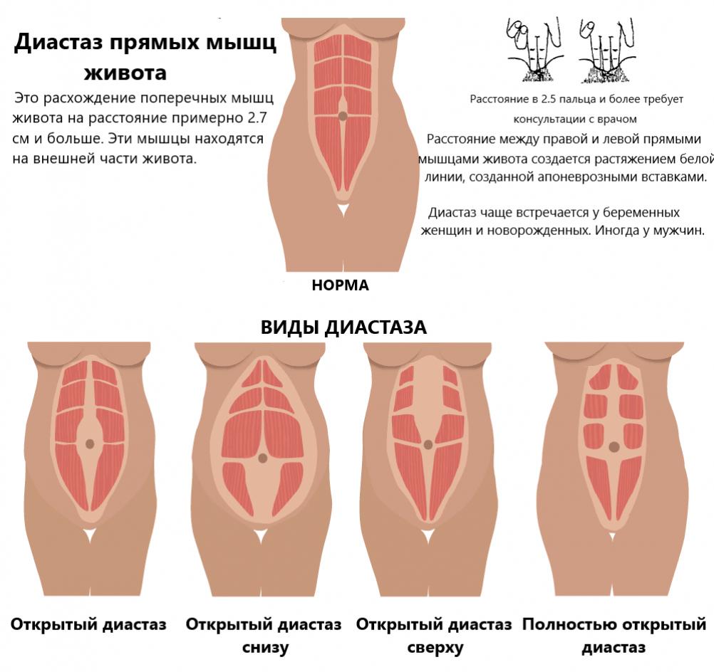 Диастаз прямых мышц живота: что это такое, причины и лечение
