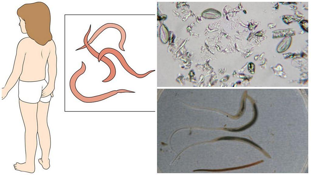 Энтеробиоз (острицы). причины, симптомы, современная диагностика, эффективное лечение и профилактика заболевания. :: polismed.com