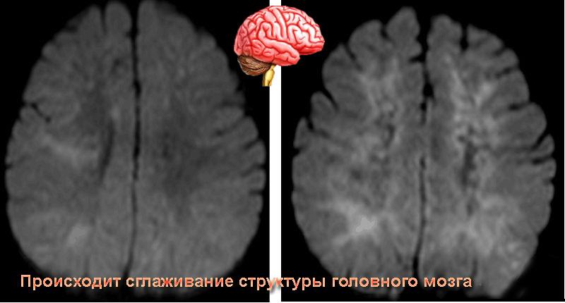 Виды и лечение энцефалопатии головного мозга у детей