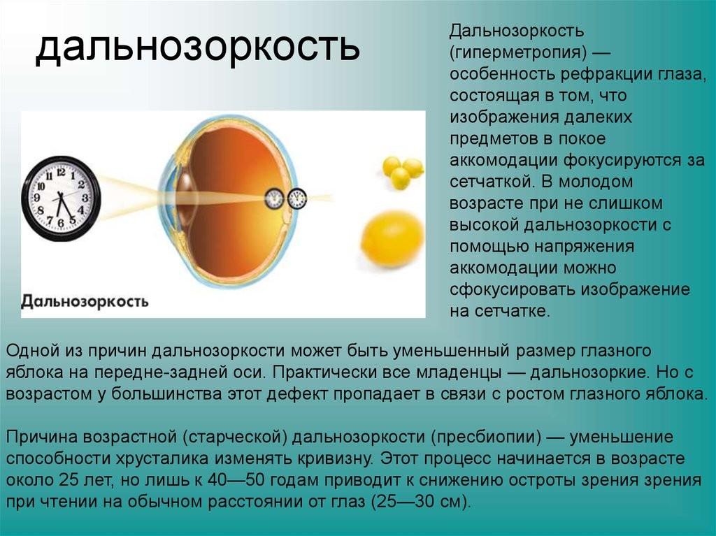 Гиперметропия высокой степени - что это, причины и лечение