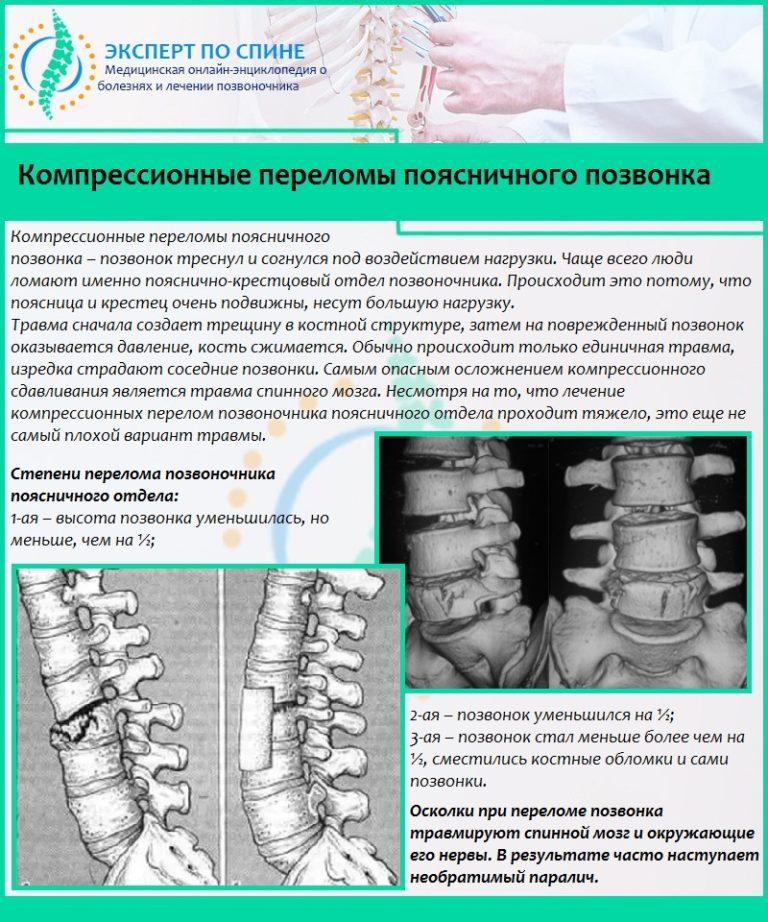 Перелом позвоночника (позвонка): основные симптомы и признаки перелома