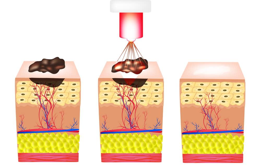 Кератоз кожи - причины, симптомы и лечение медикаментами и народными средствами