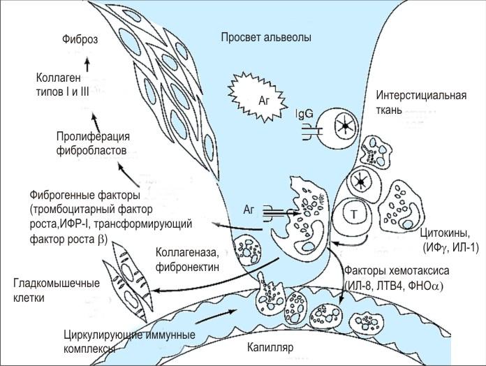 Альвеолит — википедия с видео // wiki 2