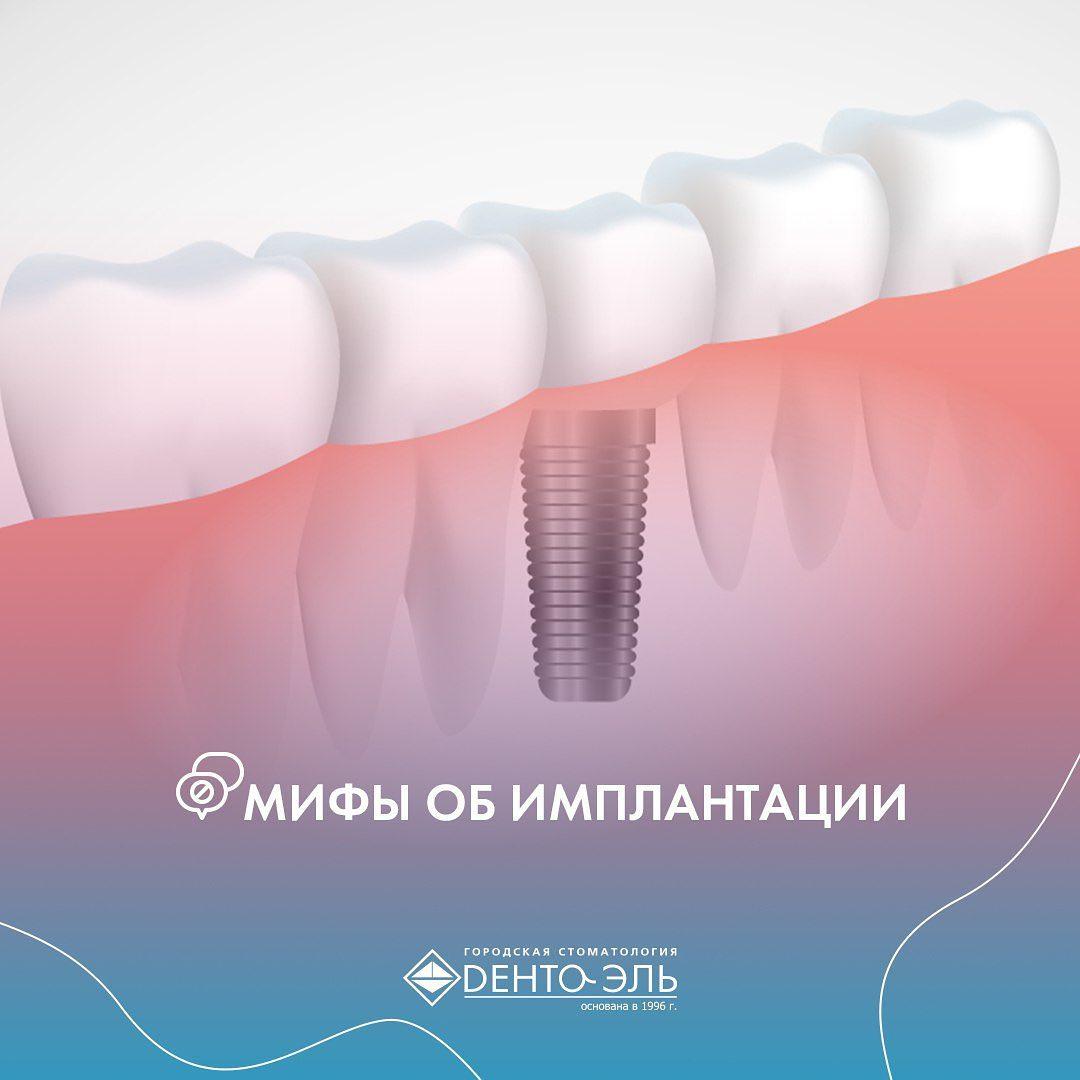 Что такое имплантация зубов и как она проводится