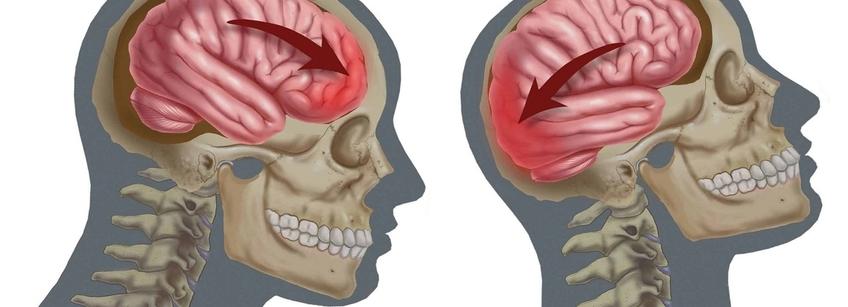Последствия сотрясения мозга: если не лечить болезнь, могут ли быть осложнения в будущем - через сколько дней, чем опасно для здоровья?