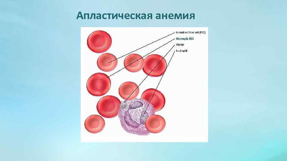 Апластическая анемия - симптомы, лечение, причины, прогноз