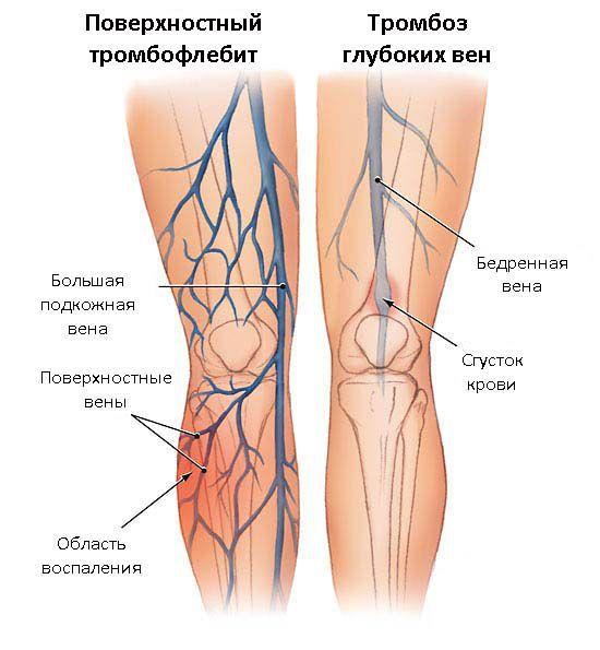 Тромбоз вен. причины, симптомы, диагностика и лечение тромбоза