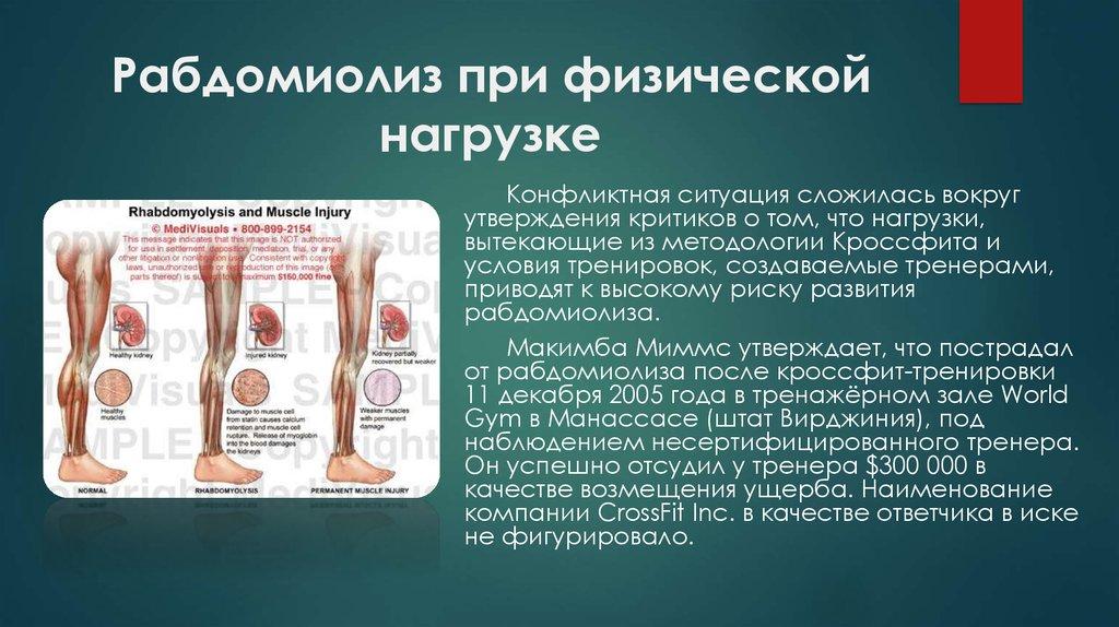 Какой врач лечит рабдомиолиз. как происходит лечение болезни. симптомы появления рабдомиолиза