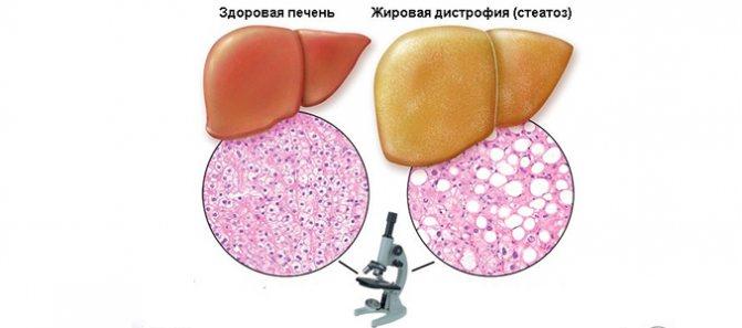 Особенности диеты при жировом гепатозе печени – рекомендуемое меню