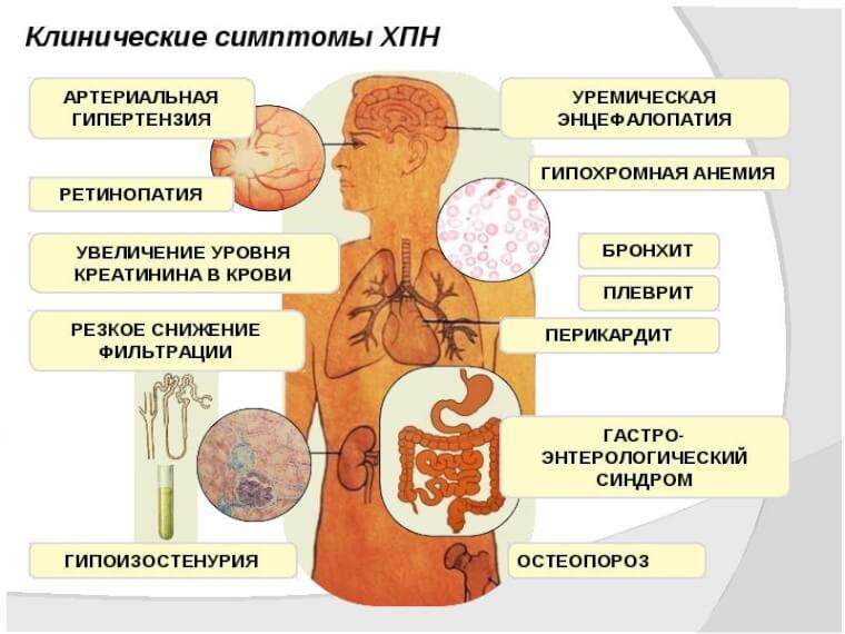 Почечная недостаточность - острая и хроническая, симптомы, лечение | здрав-лаб