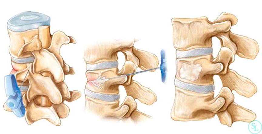 Последствия компрессионного перелома позвоночника | спина доктор