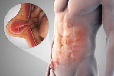 Паховая грыжа у женщин: фото, симптомы и лечение без операции