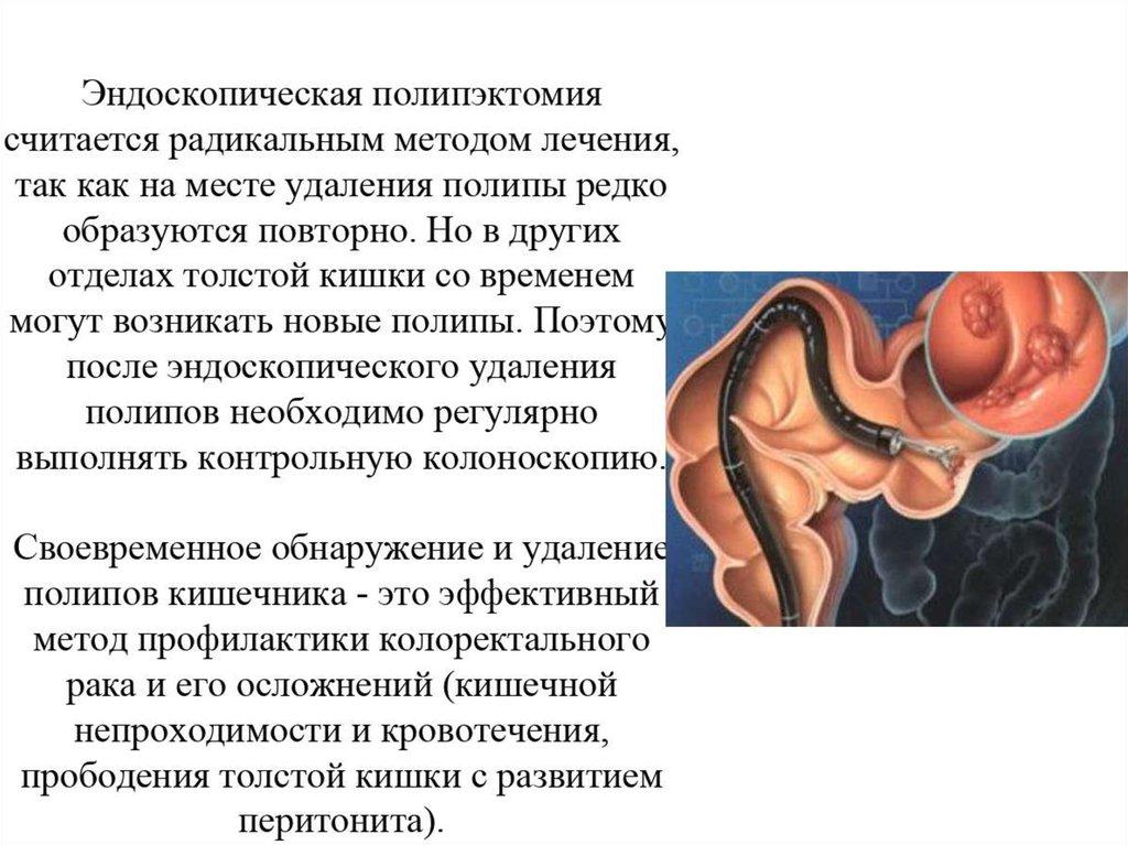 Полипы в кишечнике: симптомы, причины, лечение, последствия