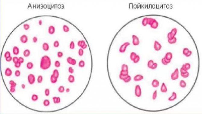 ✅ анизоцитоз и пойкилоцитоз в общем анализе крови - денталюкс.su
