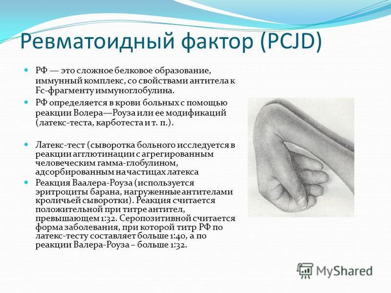 Анализ крови на ревматоидный фактор: подготовка и расшифровка
