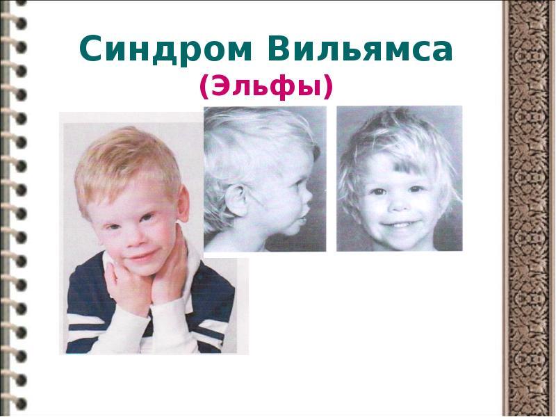 Синдром вильямса: лечение и ноотропная терапия, фото детей с лицом эльфа