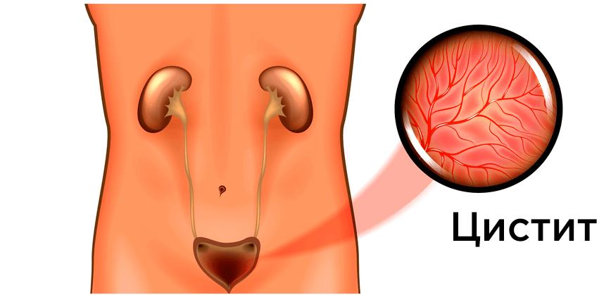 Цистит — что это, симптомы у женщин и мужчин, методы лечения и профилактики цистита