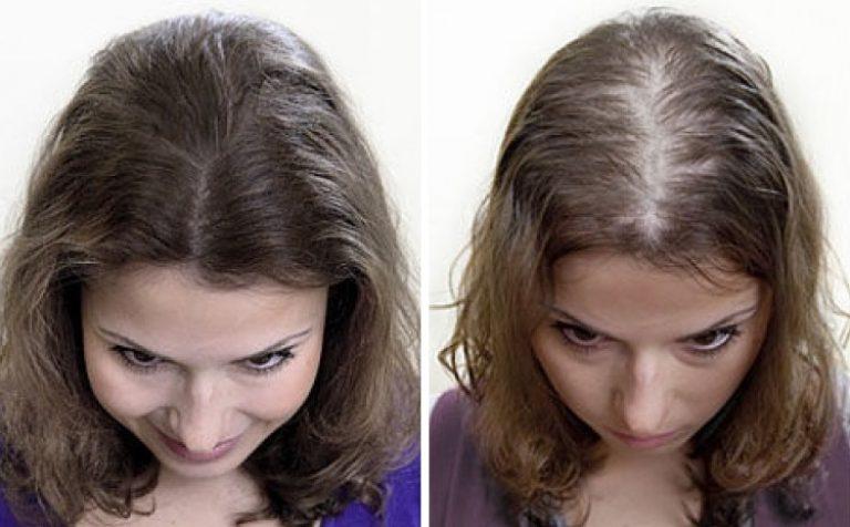 Алопеция или облысение у женщин: виды, симптомы, лечение | у гиппократа