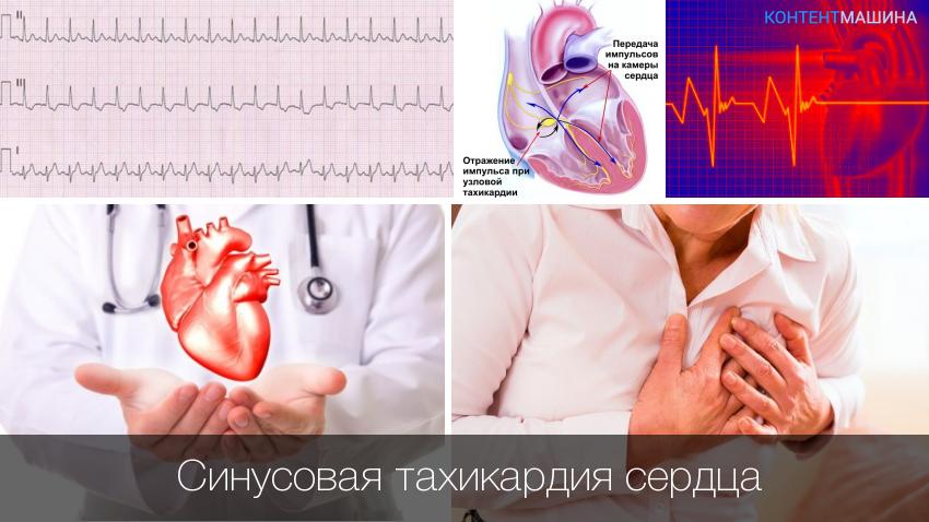 Что нужно знать о синусовой тахикардии? мнение кардиологов