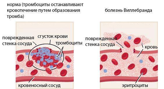 Болезнь виллебранда - причины, симптомы, диагностика, лечение