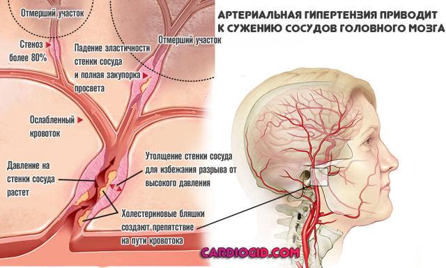 Церебральный атеросклероз — что это такое?