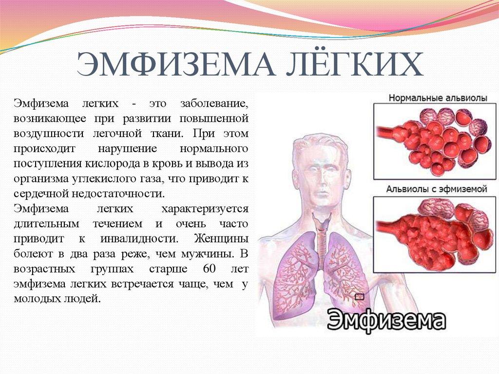 Буллы в лёгких - вопрос пульмонологу - 03 онлайн