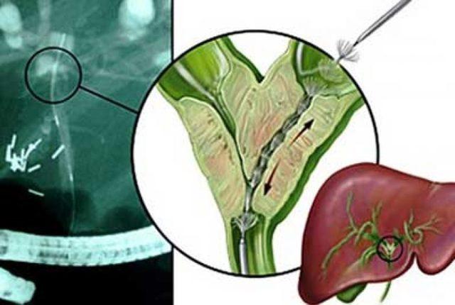Опухоль клацкина (рак желчных протоков): симптомы, классификация, 1-4 стадия болезни, лечение, продолжительность жизни