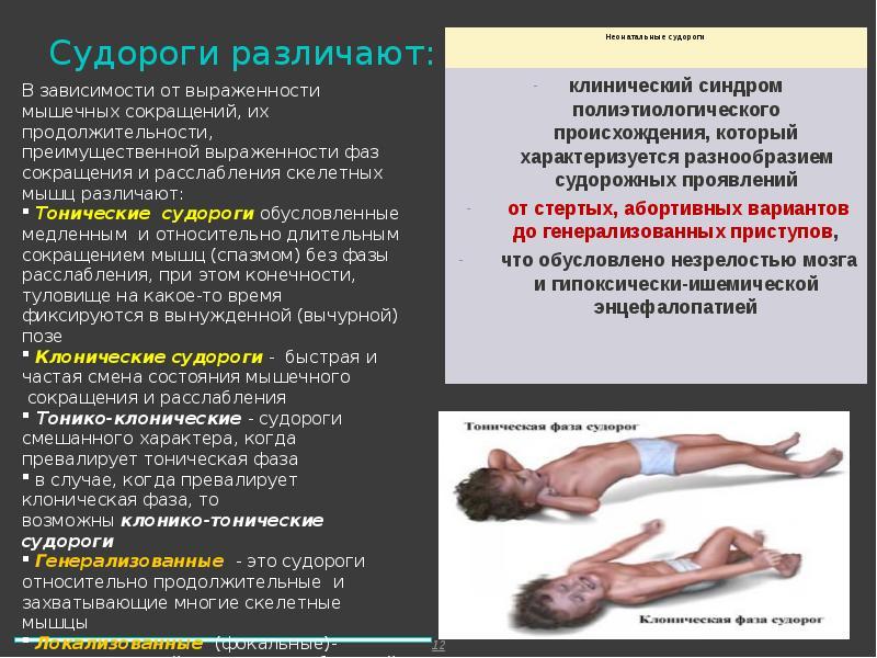 Судорог - причины, симптомы и народные средства лечения судорог . видео