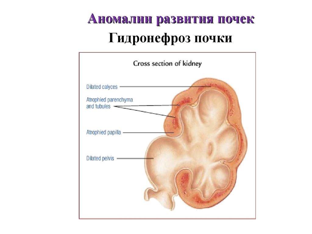 Причины развития гидронефроза почки и диагностика патологии