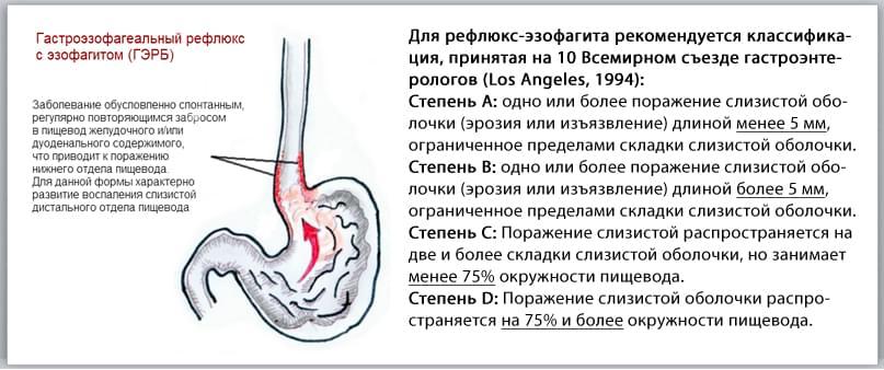 Особенности рефлюкса гастроэзофагеального: симптомы и лечение