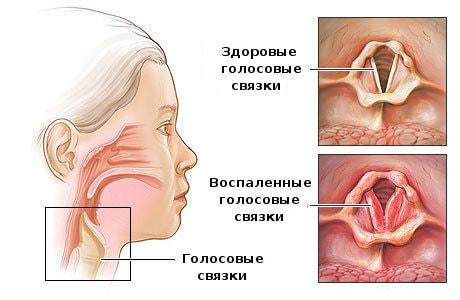 Ларингит – симптомы, лечение, причины, виды, помощь