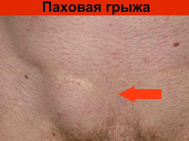 Паховая грыжа у мужчин: симптомы, лечение и последствия