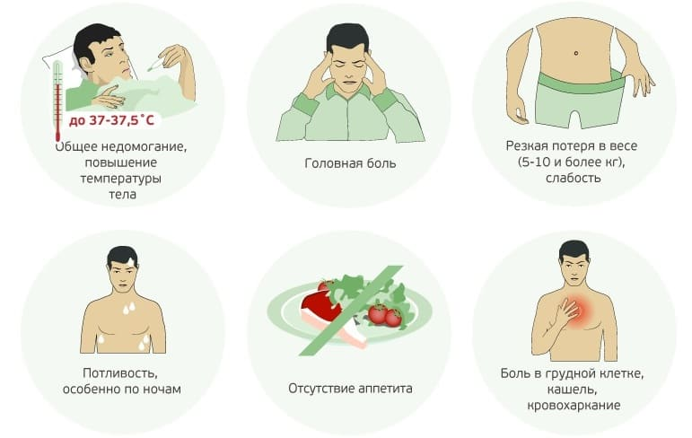 Туберкулез: механизм развития и классификация болезни   food and health