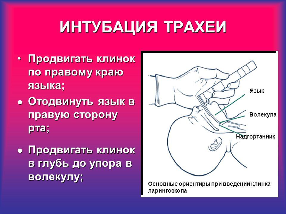 Что такое интубация и почему это делается? - хирургия - 2020