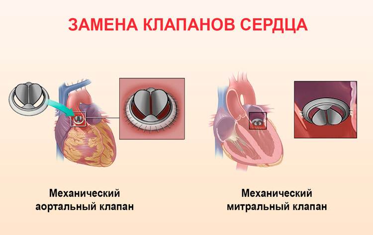 Симптомы аортального порока сердца и что делать при комбинированном пороке