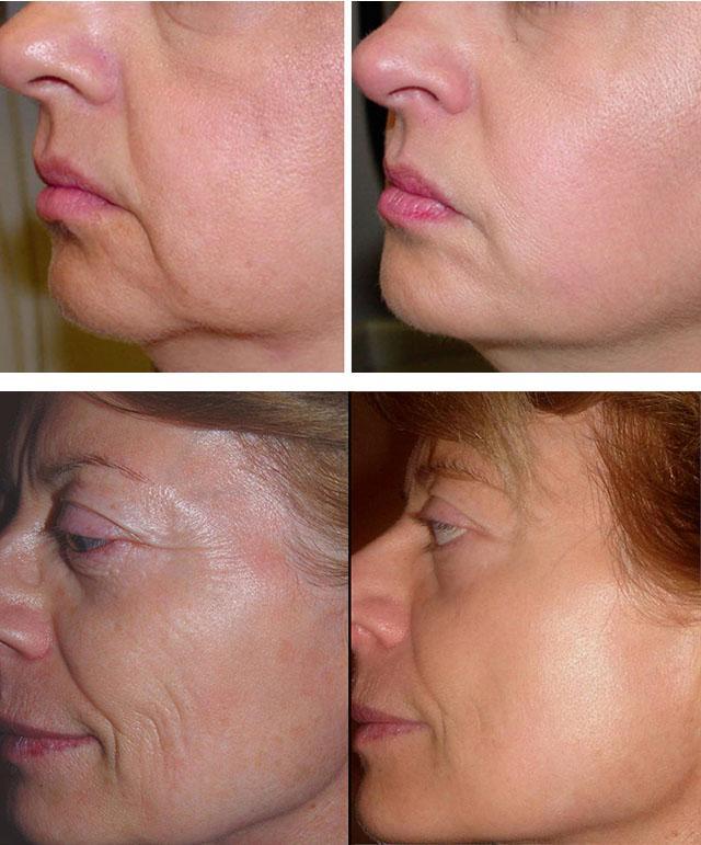 Лифтинг лица и кожи вокруг глаз (массаж): что это такое, виды, противопоказания, микротоковая форма, упражнения