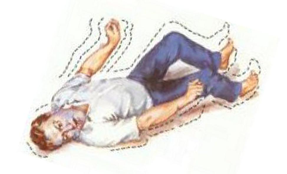 Конвульсия - что такое означает этот симптом?