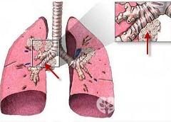 Пневмофиброз легких лечение народными средствами