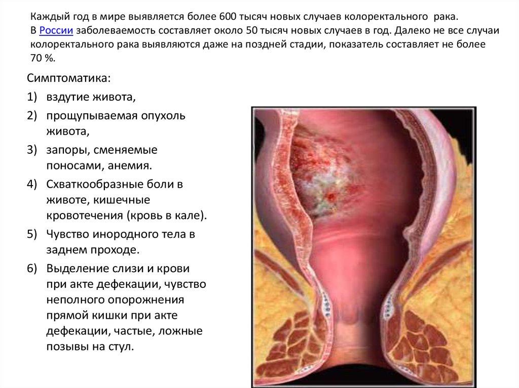 Что такое дефекация: разновидности и физиологические подробности процесса