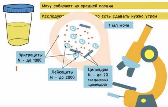 Повышенные лейкоциты в моче: причины, норма у женщин и мужчин